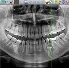 Цифровые панорамные рентгены