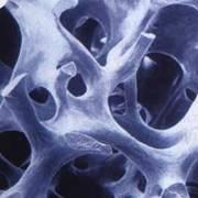 Остеопластические материалы, искусственная кость