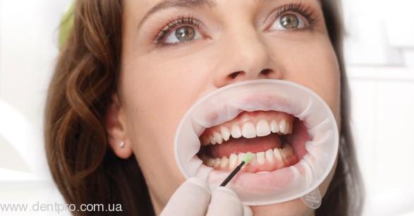 Ретрактор эластичный ОптраГейт (OptraGate), роторасширитель для защиты губ пациента, - 3