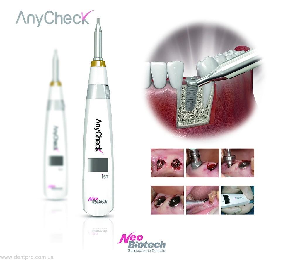 AnyCheck NeoBiotech Прибор для измерения степени остеоинтеграции имплантата - 1